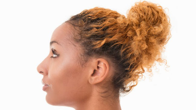 Avoid hairstyles that pull on the hairline - makefitness.com